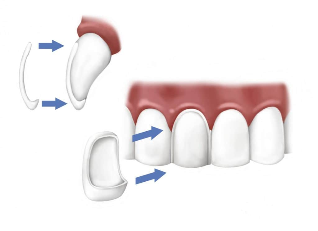 porcelain veneers cost in croatia